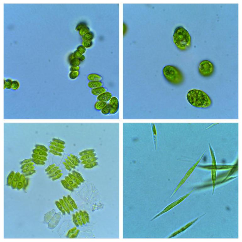 Montasje av forskjellige mikroalger som lever i ferskvann, og som er undersøkt i doktorgradsarbeidet til Ikumi Umetani